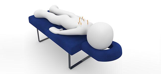 Positieve effecten van acupunctuur