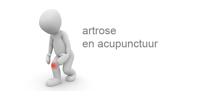 Artrose en acupunctuur
