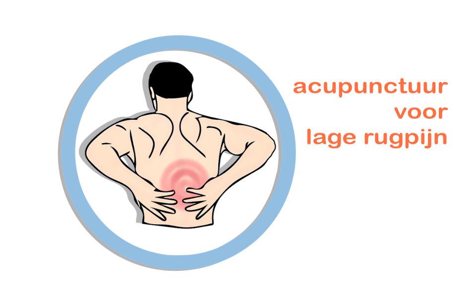 Amerika vergoedt acupunctuur voor lage rugpijn vanuit basisverzekering