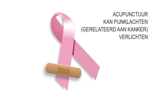Acupunctuur kan pijnklachten kankerpatiënten bestrijden